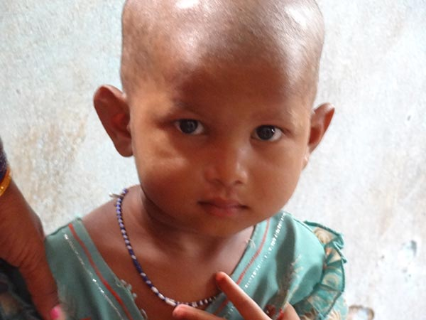 Salud infantil en India