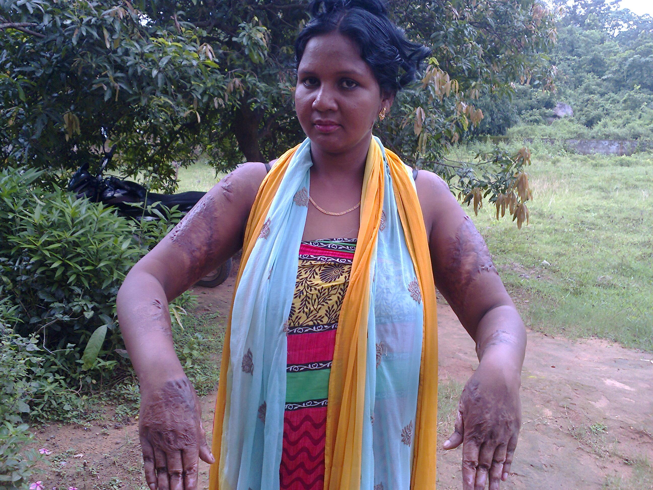 Ayuda a Subhadra. Sufrió un ataque con ácido